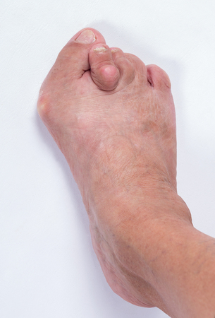 Foot of a woman with advanced stage bunion Hallux abductus valgus Stock Photo