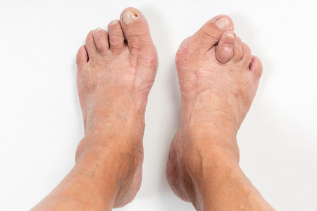 Feet of a woman with advanced stage bunion (Hallux abductus valgus)