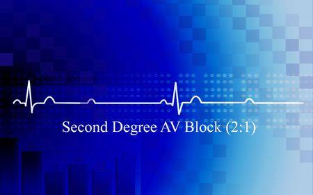 Digital illustration of   second degree AV block in coronary disease on blue background illustration