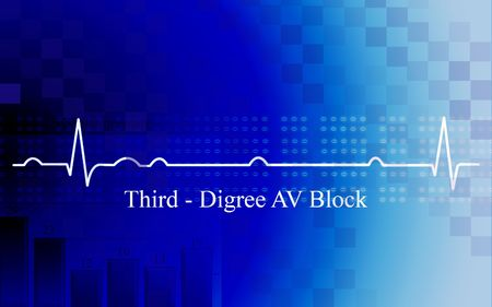 Digital illustration of   third degree AV block in coronary disease on blue background Stock Illustration - 6635082