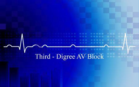 Digital illustration of   third degree AV block in coronary disease on blue background Stock Illustration - 6635082