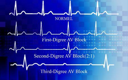 Digital illustration of   all degree AV block in coronary disease on blue background illustration