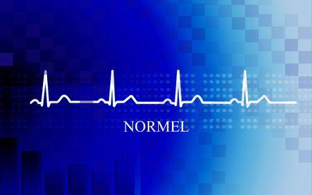 Digital illustration of   Normal stage AV block in coronary disease on blue background illustration