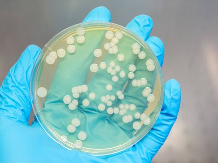 hand holding a petri dish with isolated bacteria colonies in a laminar flow cabinet of a bacteriologial laboratory Stockfoto