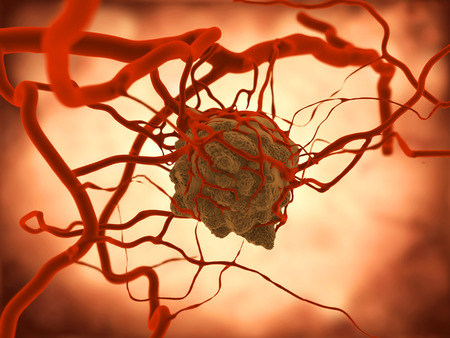 benign: Tumor. A tumor induces an increased vacularization Stock Photo