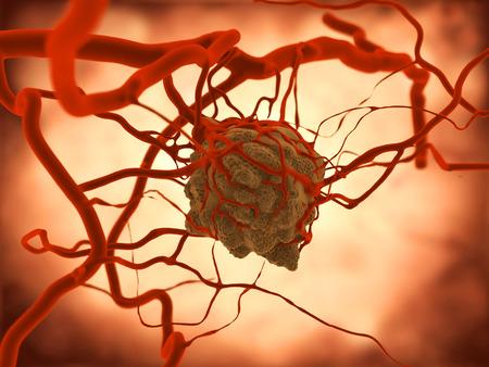 carcinogen: Tumor. Un tumor induce un aumento de la vascularizaci�n