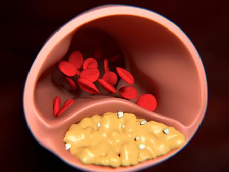 동맥 경화. 동맥 벽 (노란색) 및 지질 (흰색) 탄산 칼슘 입자의 acccumulation의 결과로 두꺼워. 스톡 콘텐츠