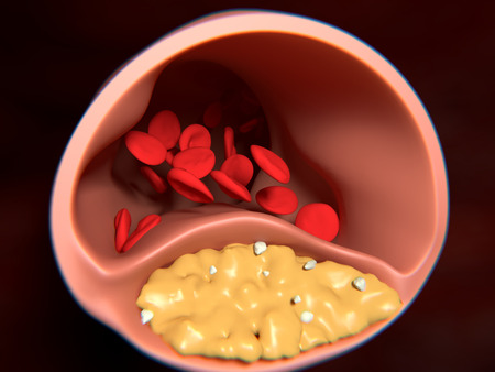 Arteriosclerosis. An artery wall thickens as a result of the acccumulation of lipids (in yellow) and calcium carbonate grains (in white).