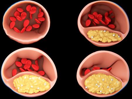 4 phases of arteriosclerosis Foto de archivo