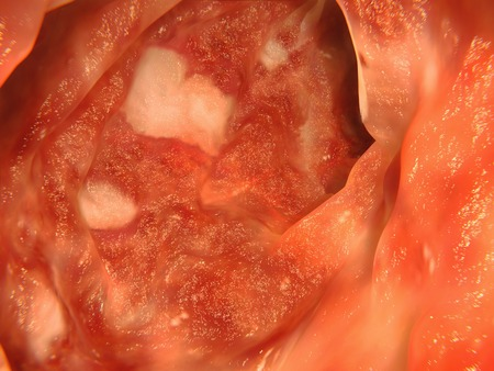 colonoscopy: Colon affected by ulcerative colitis
