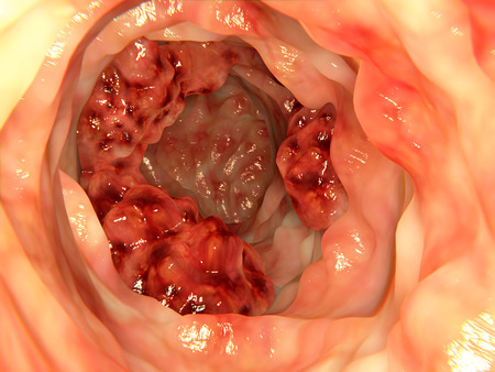 colonoscopy: Intestinal tumor (bowel cancer) Stock Photo
