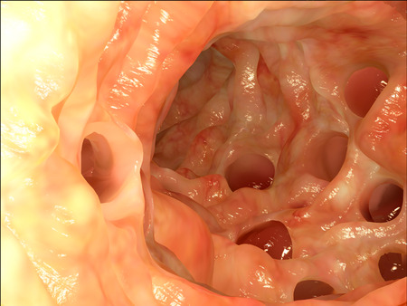 Diverticula in the colon Foto de archivo
