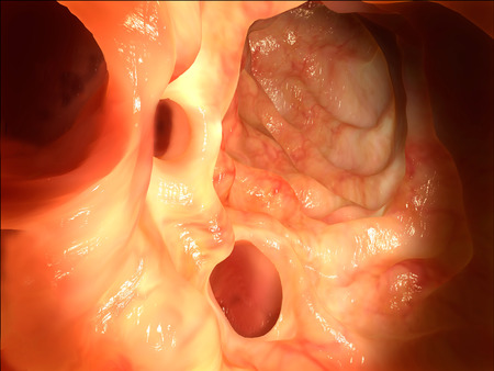 colonoscopy: Diverticula in the colon Stock Photo