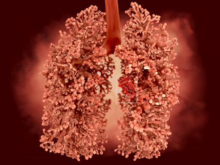 Human lung affected by lung cancer
