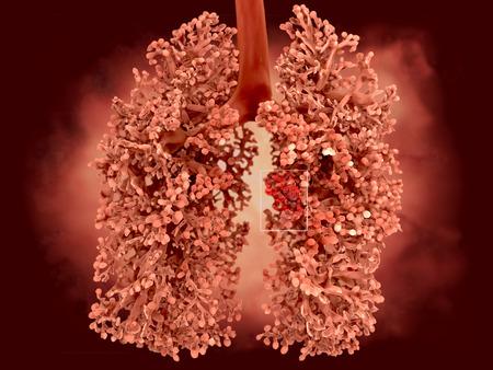 lungenkrebs: Human lung von Lungenkrebs betroffen