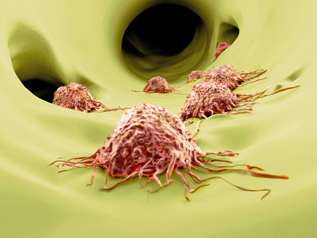 Cancer cell attacked by lymphocytes Stock Photo