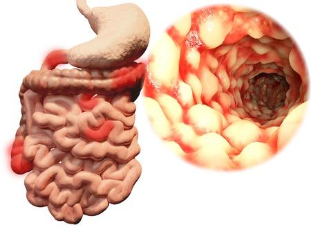 biopsia: Enfermedad de Crohn, el tracto gastrointestinal Foto de archivo