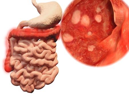 biopsia: La aparici�n de colitis ulcerosa en el tracto gastrointestinal Foto de archivo