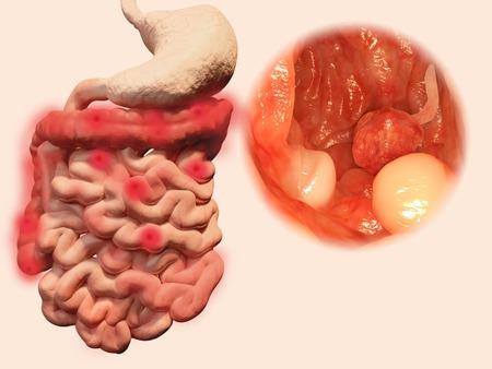 intestino grueso: La aparición de pólipos en el tracto gastrointestinal