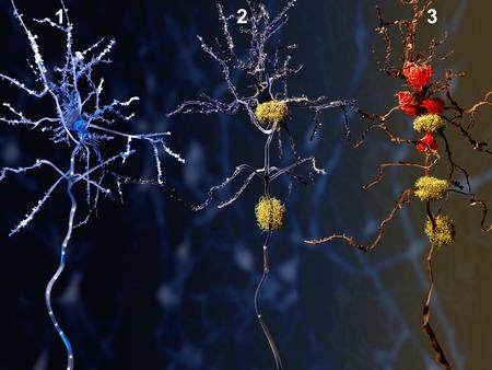 neurona: 3 fases de la enfermedad de Alzheimer Foto de archivo