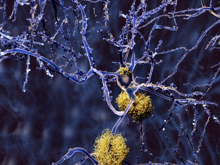 senile: Alzheimer disease, neurons with amyloid plaques