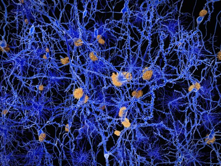 neuron: La enfermedad de Alzheimer, las neuronas con las placas amiloides Foto de archivo