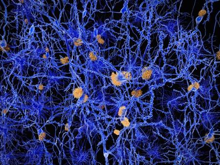 La maladie d'Alzheimer, les neurones avec des plaques amyloïdes Banque d'images - 46572772
