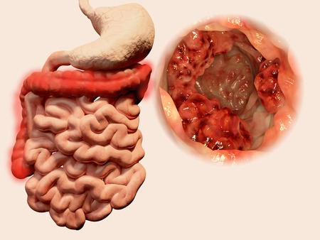 intestines: Occurrence of  malign tumors in the intestines