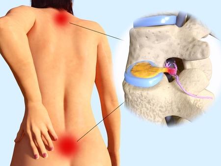 Spinální herniace disku
