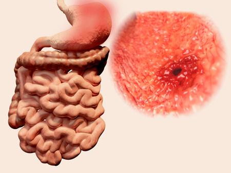 esofago: Úlcera péptica Foto de archivo