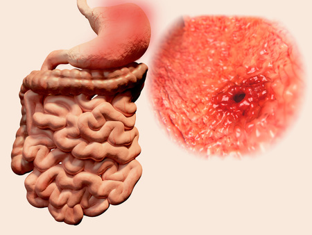 stomach acid: Peptic ulcer Stock Photo