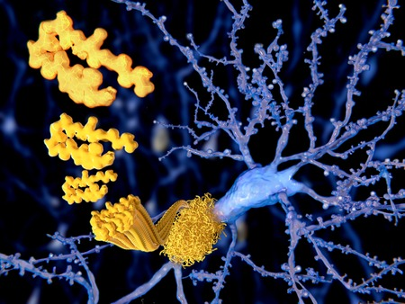 intracellular: The beta amyloid peptid aggregates to amyloid plaques, Alzheimer disease Stock Photo