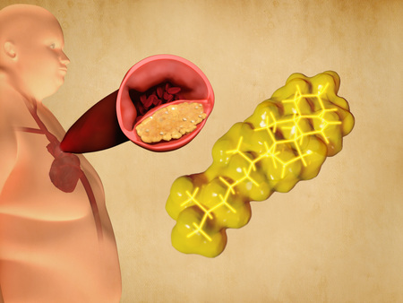 good cholesterol: Cholesterol and atherosclerosis Stock Photo