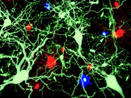 Brain cells: Green: pyramidal neurons, red: astrocytes, blue: microglia cells. Фото со стока