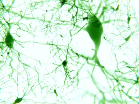 Pyramidal neurons fluorescence-marked. They are found in the cerebral cortex, the hippocampus and the amygdala.