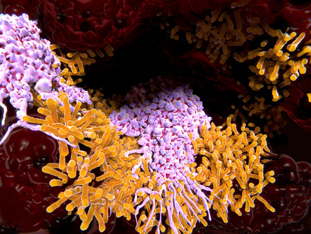 Makrophages engulfing tuberculosis bacillus in the lungs