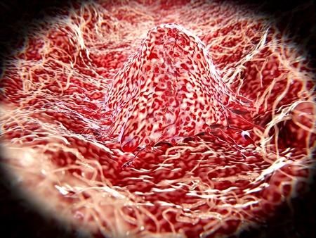 Migrating cancer cell Фото со стока