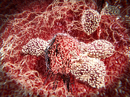 T-Lymphocytes attacking cancer cell.Natural killer cells are a type of lymphocytes which destroy cancer cells and other altered cells releasing cytotoxic granules. Stock Photo