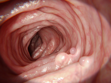 inflammatory bowel disease: Polyps in the intestine Stock Photo