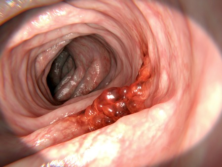 Malign tumor in the colon. Risk factors for colorectal cancer are unhealthy eating, smoking, obesity and lack of physical activity.