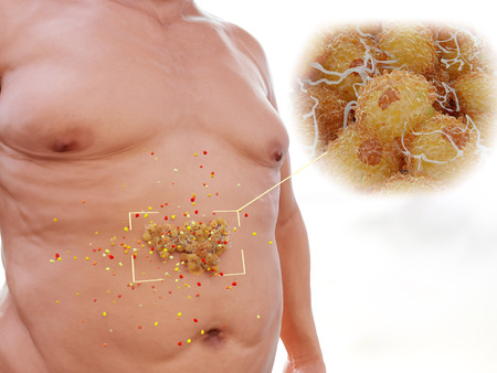 The visceral fat is highly hormonally active