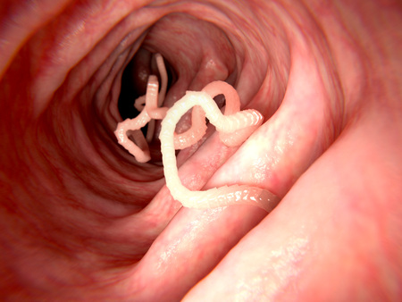 Lintworm in de dunne darm