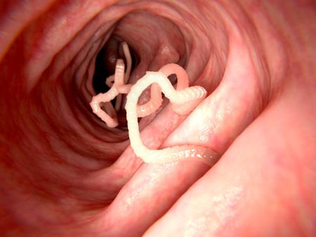 Bandwurm im menschlichen Darm
