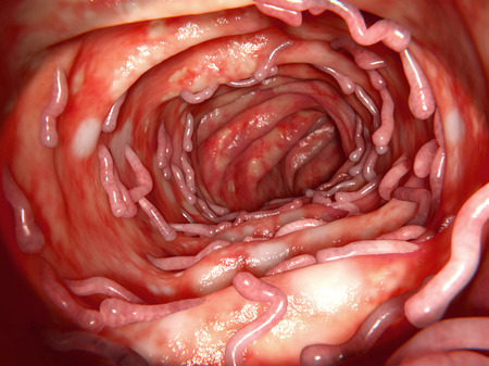 Colon affected by ulcerative colitis, with massive pseudopolyps Stock Photo