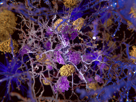 Alzheimer disease:  The yellow structures are amyloid plaques damaging neurons. The violet cells are microglia cells that phagocyte and degrade a sick neuron