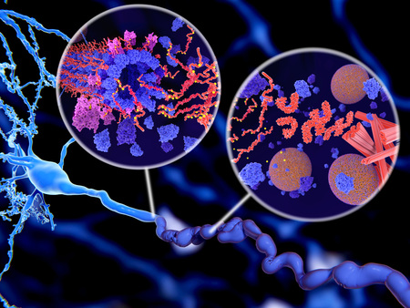 Alzheimer's disease. Pathological Tau protein (red-orange) phosphorylation (yellow) leads to disintegration of microtubuli and aggregation to neurofibrillary tangles (orange) in a neuron axon. The transport of synaptic vesicles(spheres) is disrupted. Foto de archivo