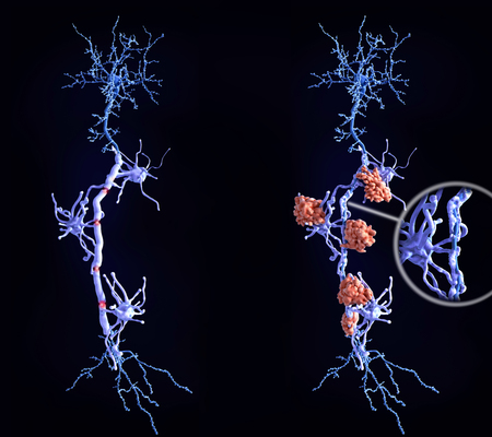 Multiple sclerosis is a demyelinating disease in which the insulating covers of nerve cells are damaged. Microglia cells attack the oligodendrocytes that form the insulating myelin sheath around neuron axons, leading to the destruction of the myelin sheath and to the loss of nerve function. Stock Photo