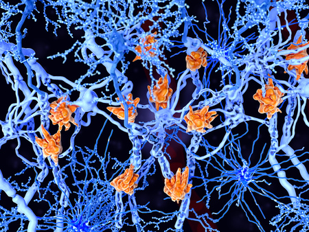 Multiple sclerosis is a demyelinating disease in which the insulating covers of nerve cells are damaged. Microglia cells (orange) attack the oligodendrocytes that form the insulating myelin sheath around neuron axons, leading to the destruction of the myelin sheath and to the loss of nerve function. Stock Photo