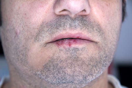 labialis: A man infected with oral herpes