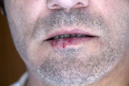 simplex: A man infected with oral herpes